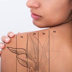 【医師が教える】刺青除去のレーザー治療は何回通えば良いの?レーザー機器ごとの治療回数