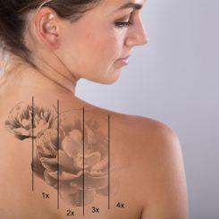 【医師が教える】レーザー治療でどうなる?刺青除去の経過を知りたい!