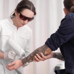 【医師が教える】痛みが少なくキレイに消える!?レーザーを使ったタトゥー除去とは?